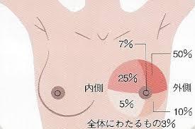 乳がんができやすい場所