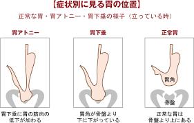 胃アトニーと胃下垂の違い