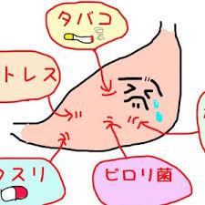 胃痛の原因