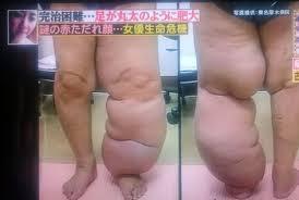 四重苦女優「古村比呂」離婚・子宮頸がん・リンパ浮腫・皮膚障害を乗り越えて
